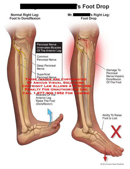 amicus,medical,foot,drop,leg,dorsiflexion,peroneal,nerve,muscles,innervates,raise,