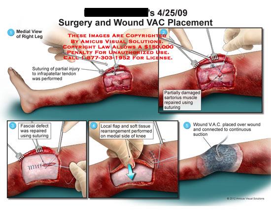 amicus,surgery,leg,knee,wound,VAC,infrapatellar,tendon,sartorius,muscle,fascial,defect,flap,soft,tissue,suction