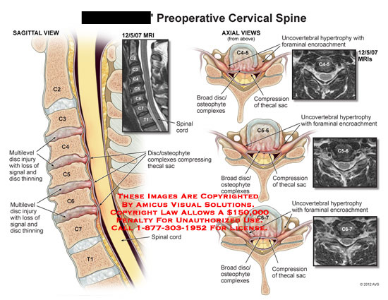 amicus,injury,spine,cervical,preoperative,disc,signal,thinning,spinal,cord,osteophyte,complexes,thecal,sac,compressing,broad,uncovertebral,hypertrophy,foraminal,encroachment,MRI
