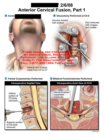 amicus,surgery,cervical,spine,fusion,part,1,discectomy,annulus,rongeur,curette,corpectomies,body,foraminotomies,neural,foramen
