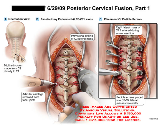 amicus,surgery,cervical,spine,fusion,part,1,facetectomy,provisional,drilling,lateral,mass,articular,cartilage,joints,pedicle,screws,fractured,