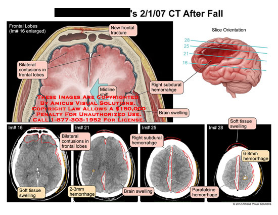 amicus,injury,brain,head,CT,fall,frontal,lobes,contusions,midline,shift,subdural,hemorrhage,swelling,soft,tissue,parafalcine,