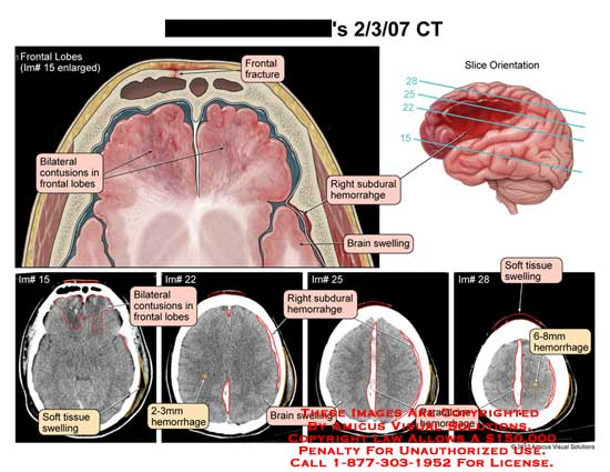amicus,injury,brain,head,CT,frontal,lobes,contusions,fracture,subdural,hemorrhage,swelling,soft,tissue,parafalcine,