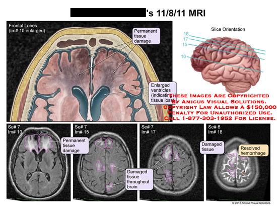 amicus,injury,brain,head,MRI,frontal,lobes,tissue,damaged,enlarged,ventricles,loss,hemorrhage
