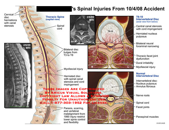 amicus,injury,spine,spinal,injuries,accident,cervical,disc,herniations,canal,stenosis,thoracic,spinal,cord,bulges,myofascial,herniated,impingement,paresis,scarring,vertebral,malalignment,flexibility,control,MRI,intervertebral,central,nucleus,pulposus,neural,foraminal,narrowing,facet,joint,dysfunction,dural,irritability,myofascial,annulus,fibrosis,nerve,roots,paraspinal,muscles