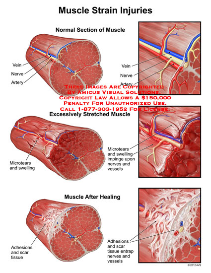 muscle injuries Certainly there are plenty of other injuries that will make themselves apparent over the course of a season, but these seem to be the ones we hear about over and over.