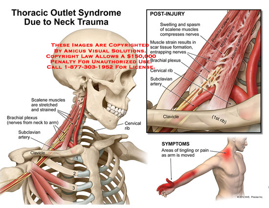 amicus,injury,neck,thoracic,outlet,syndrome,trauma,scalene,muscles,stretched,strained,brachial,plexus,arm,nerves,subclavian,artery,clavicle,rib,cervical,swelling,spasm,compresses,scar,tissue,entrapping,symptoms,tingling,pain,