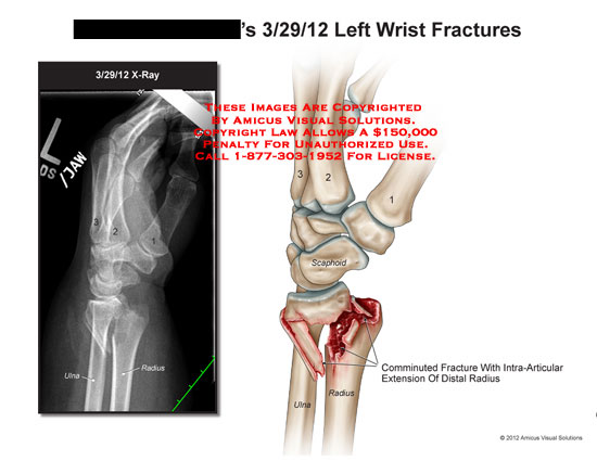 amicus,injury,wrist,fractures,ulna,radius,scaphoid,x-ray,comminuted,intra-articular,extension