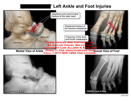 amicus,injury,ankle,foot,injuries,tibia,talus,calcaneus,navicular,displaced,comminuted,fracture,talar,head,metatarsal,x-ray
