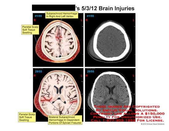 amicus,injury,brain,CT,subarachnoid,hemorrhage,vertex,parietal,scalp,tissue,swelling,sylvian,fissures,axial