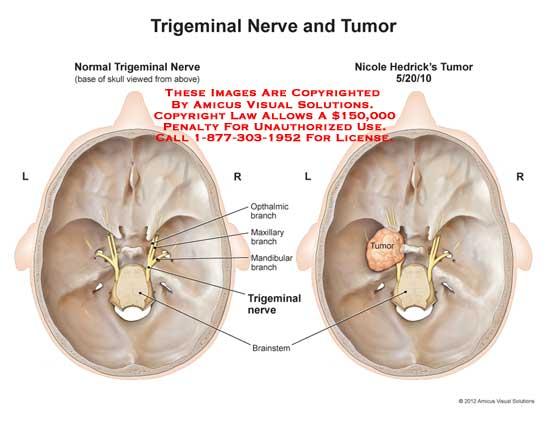 amicus,injury,tumor,trigeminal,nerve,ophthalmic,branch,maxillary,mandibular,brainstem