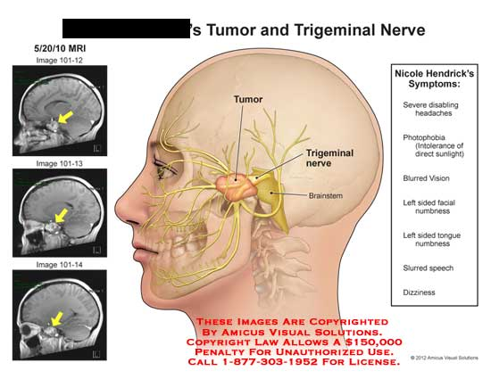 amicus,inury,tumor,trigeminal,nerve,brainstem,headaches,photophobia,intolerance,sunlight,blurred,vision,facial,numbness,tongue,slurred,speech,dizziness,symptoms