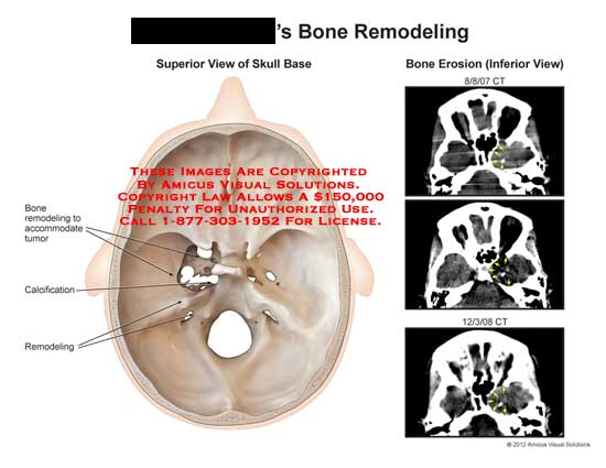 amicus,injury,tumor,bone,skull,cranial,erosion,calcification,base,CT