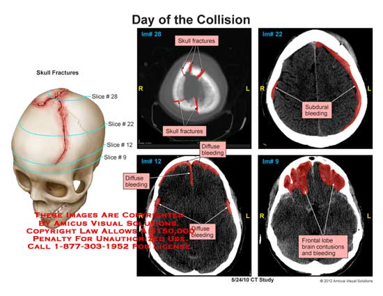 amicus,injury,skull,CT,fracture,diffuse,bleeding,frontal,lobe,contusions,brain,subdural