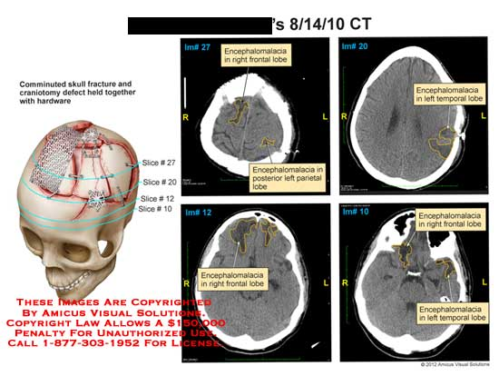 amicus,injury,brain,CT,skull,comminuted,fracture,craniotomy,defect,hardware,encephalomacia,frontal,lobe,parietal,temporal
