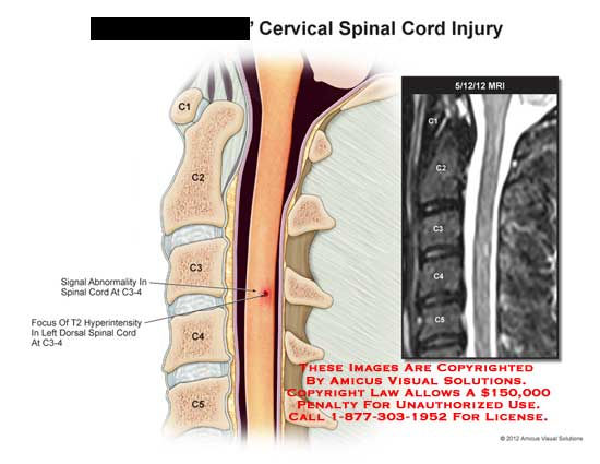 amicus,injury,spinal,cord,cervical,signal,abnormality,hyperintensity,dorsal