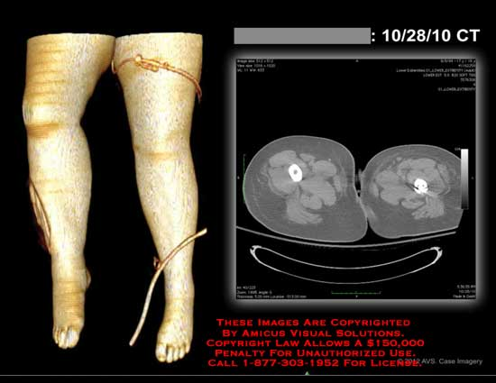 amicus,injury,knee,CT,leg,thigh