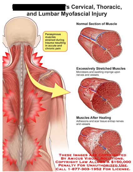 amicus,injury,cervical,thoracic,lumbar,myofascial,paraspinous,muscle,strain,trauma,acute,chronic,pain,excessively,stretch,microtear,swelling,nerve,vessel,after,healing,adhesions,scar,tissue