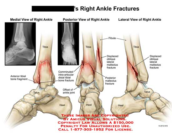 amicus,injury,tibia,bone,fragment,talus,comminuted,intra-articular,heel,malleolus,fibula,displaced,oblique