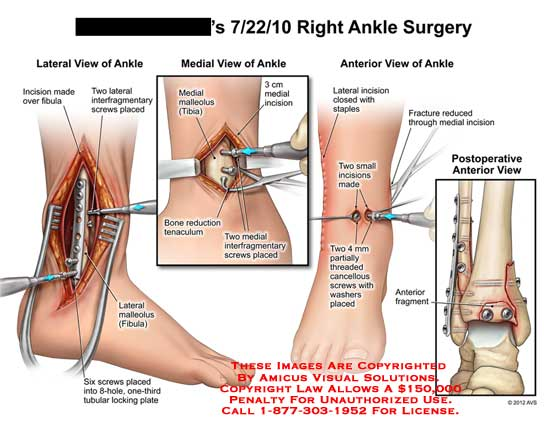 amicus,surgery,ankle,fibula,incision,interfragmentary,screws,malleolus,tubular,locking,plate,bone,reduction,tenaculum,tibia,staples,cancellous,washers,fracture