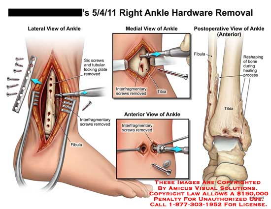 amicus,surgery,ankle,tubular,locking,plate,screw,removed,fibula,interfragmentary,reshaping,bone,healing,process,postoperative