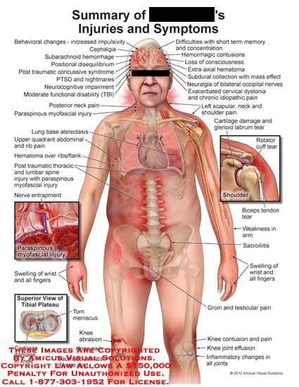 amicus,injury,summary,symptoms,behavioral,change,impulsivity,cephalgia,subarachnoid,hemorrhage,positional,disequilibrium,concussive,syndrome,PTSD,nightmare,neurocognitive,impairment,disability,TBI,neck,pain,lung,base,atelectasis,abdominal,rib,hematoma,flank,thoracic,lumbar,myofascial,nerve,entrapment,swelling,wrist,finger,cartilage,damage,arthritis,knee,abrasion,groin,testicular,sacroilitis,weakness,arm,rotator,cuff,tear,short,term,memory,subdural,collection,mass,effect,neuralgia,bilateral,occip