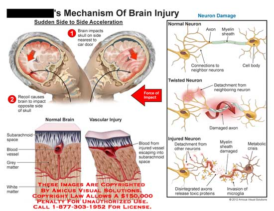 amicus,injury,brain,side,acceleration,impact,skull,car,door,recoil,opposite,side,force,normal,vascular,subarachnoid,space,blood,vessel,neuron,damage,twisted,detachment,disintegrated,release,toxic,protein,invasion,microglia,metabolic,crisis,myelin,sheath,axon