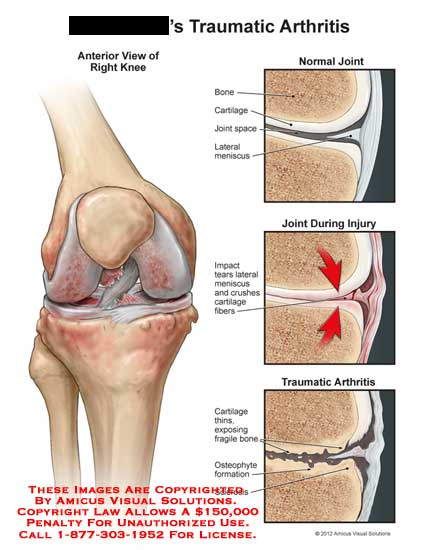 amicus,injury,knee,bone,cartilage,joint,space,meniscus,impact,tear,crush,fiber,thin,sclerosis,fragile