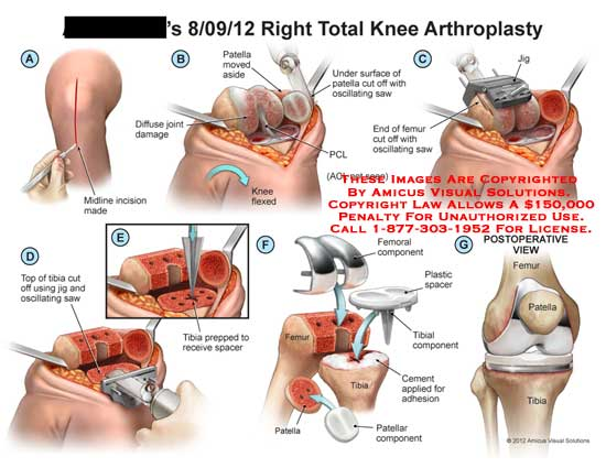 amicus,surgery,knee,arthroplasty,patella,diffuse,joint,PCL,ACL,femur,oscillating,saw,tibia,jig,spacer,plastic,cement
