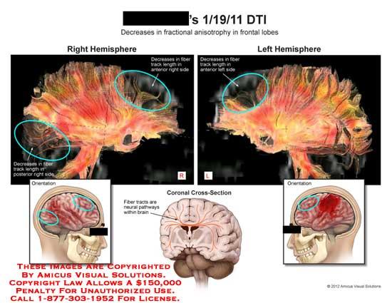 amicus,brain,fractional,anisotrophy,frontal,lobe,fiber,track,decrease,neural,pathway,hemisphere,length