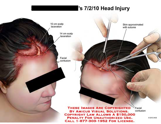 amicus,injury,head,scalp,laceration,facial,contusion,skin,suture,face