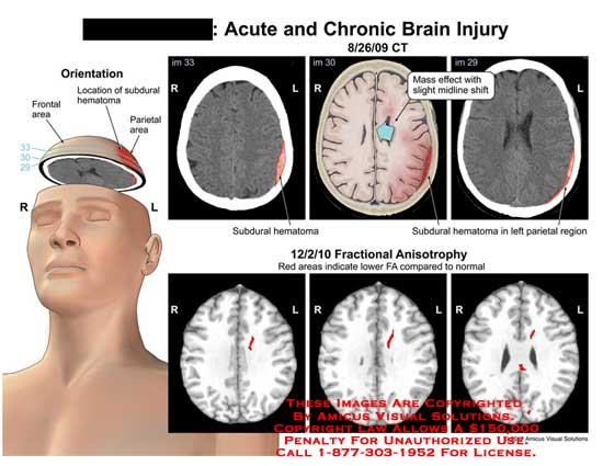 amicus,injury,brain,acute,chronic,frontal,area,subdural,hematoma,parietal,mass,effect,slight,midline,shift,fractional,anisotrophy