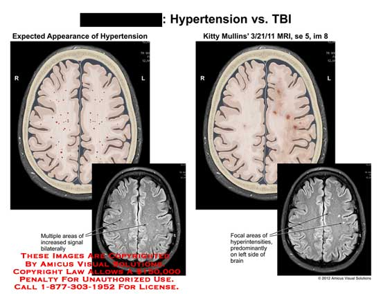 amicus,injury,brain,hypertension,multiple,area,increased,signal,bilateral,focal,predominantly,brain,MRI