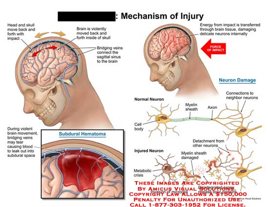 amicus,injury,brain,head,impact,violent,skull,veins,sagittal,sinus,bridging,tear,blood,leak,subdural,space,hematoma,cell,body,neuron,damage,tissue,internal,disintegrated,myelin,sheath,invasion,microglia,intact