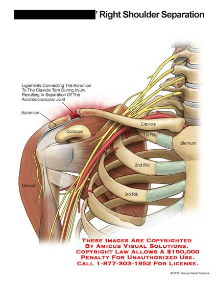 amicus,injury,shoulder,separation,ligament,acromion,clavicle,torn,acromioclavicular,joint,coracoid,deltoid,rib,sternum