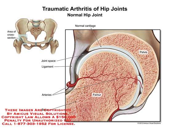 amicus,injury,hip,femur,pelvis,arteries,bone,cartilage,normal,joint,space,ligament