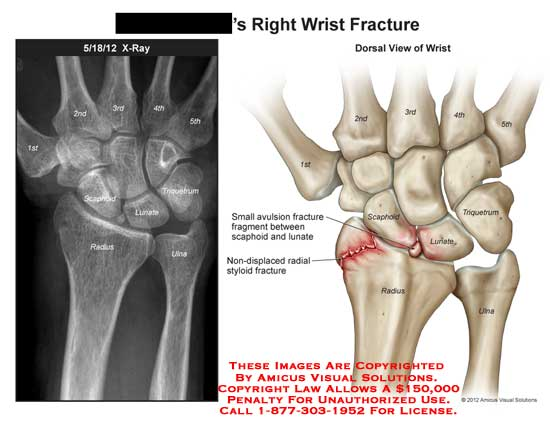 amicus,injury,wrist,avulsion,fracture,scaphoid,lunate,radial,styloid,X-ray,ulna