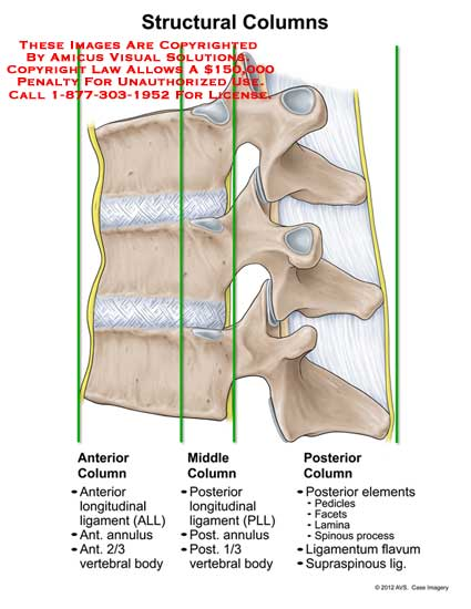 amicus,injury,anatomy,vertebral,column,anterior,middle,posterior,ALL,anterior,longitudinal,ligament,annulus,vertebral,body,PLL,posterior,pedicle,facet,lamina,spinous,process,ligamentum,flavum,supraspinous,bone