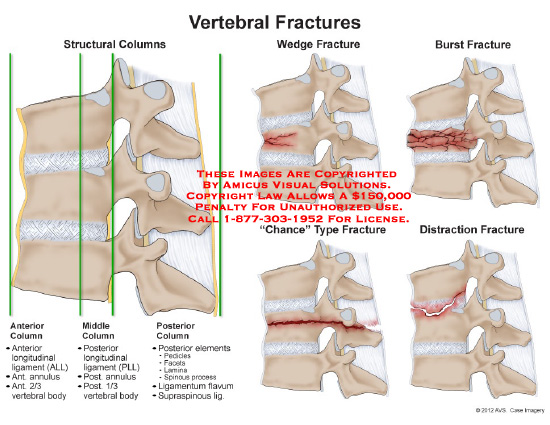 amicus,injury,structural,columns,fractures,vertebral,wedge,burst,compression,chance,distraction,body,ligament,facet,anterior,middle,posterior,disc,spine