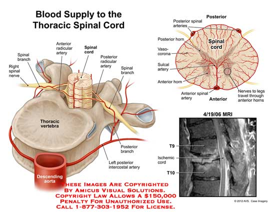AMICUS Illustration of amicus,injury,anatomy,thoracic,vertebra ...