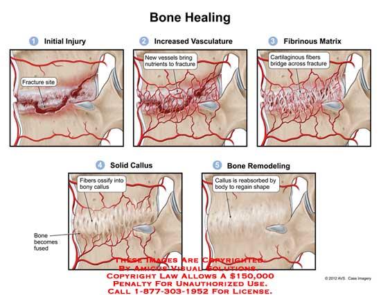 amicus,injury,bone,healing,fracture,site,increased,vasculature,vessels,nutrients,fibrinous,matrix,cartilaginous,fibers,bridge,solid,callus,ossify,bony,fuse,remodeling,reabsorbed,regain,shape