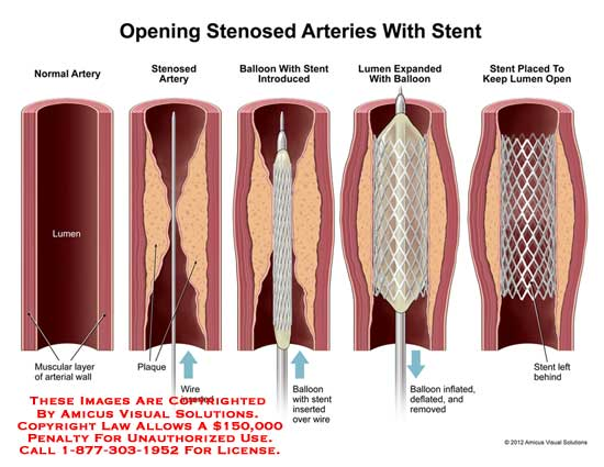 amicus,surgery,stenosed,arteries,artery,stent,normal,muscular,layer,wall,plaque,wire,inserted,balloon,introduce,lumen,expand,inflate,deflate,remove