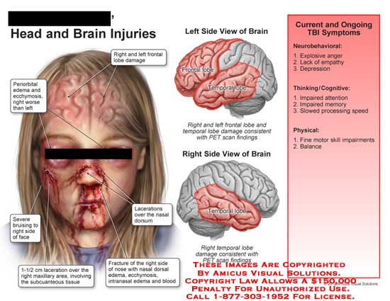 amicus,injury,head,brain,frontal,lobe,damage,periorbital,ecchymosis,bruising,face,laceration,maxillary,subcutaneous,tissue,fracture,nose,nasal,edema,intranasal,blood,temporal,PET,scan,TBI,behavior,neurobehavioral,explosive,anger,empathy,depression,impaired,attention,memory,balance