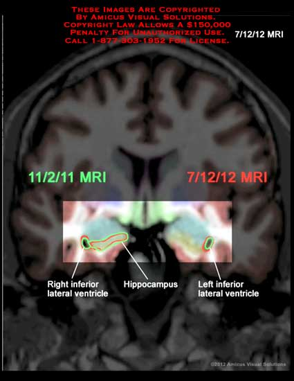 amicus,radiology,injury,brain,lateral,ventricle,hippocampus,MRI