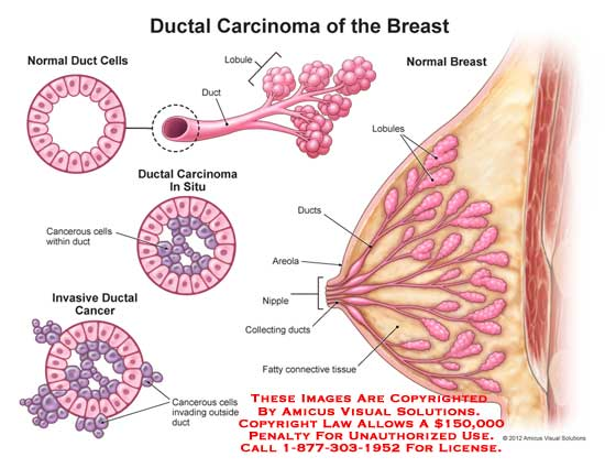 amicus,injury,cancer,ductal,carcinoma,breast,normal,cells,cancerous,invasive,outside,lobule,areola,nipple,fatty,connective,tissue,collecting,situ