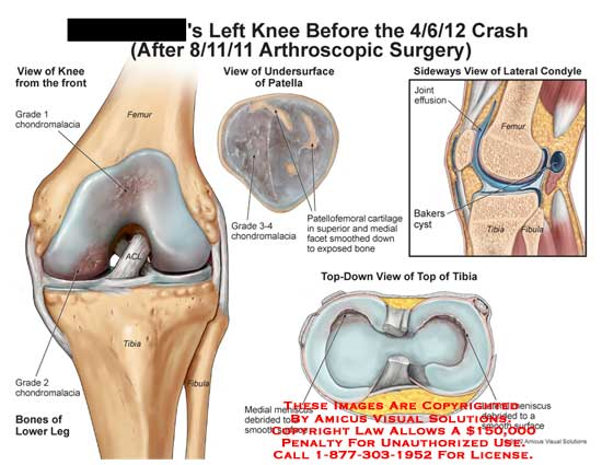 amicus,injury,knee,grade,1,chondromalacia,femur,ACL,2,bone,lower,leg,tibia,meniscus,debride,smooth,surface,patella,undersurface,patellofemoral,cartilage,expose,bakers,cyst,joint,effusion,fibula