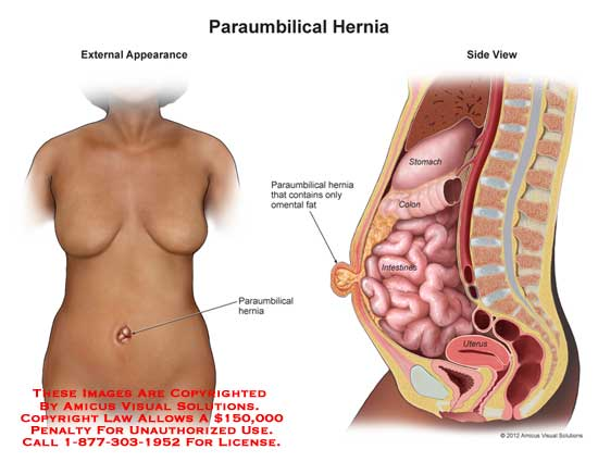 AMICUS Illustration of amicus,injury,hernia,paraumbilical,hernia,stomach ,omental,fat,colon,intestines,uterusMedical Exhibits