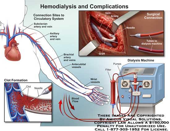 amicus,injury,FSGS,focal,segmental,glomerulosclerosis,hemodialysis,circulatory,system,axillary,artery,vein,brachial,antecubital,vessel,wrist,clot,formation,dialysis,machine,graft,tubes,needle,filter,pump