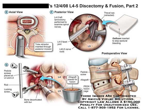 amicus,surgery,discectomy,laminotomy,exmaine,spinal,nerve,tube,retractor,incision,pedicle,screw,locking,rod,bone,decorticated,bur,allograft,fusion,PEEK,cage,gelfoam,epidural,bleeding,facet,joint,thecal,sac