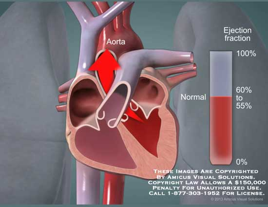 amicus,animation,still,heart,ejection,fraction,aorta